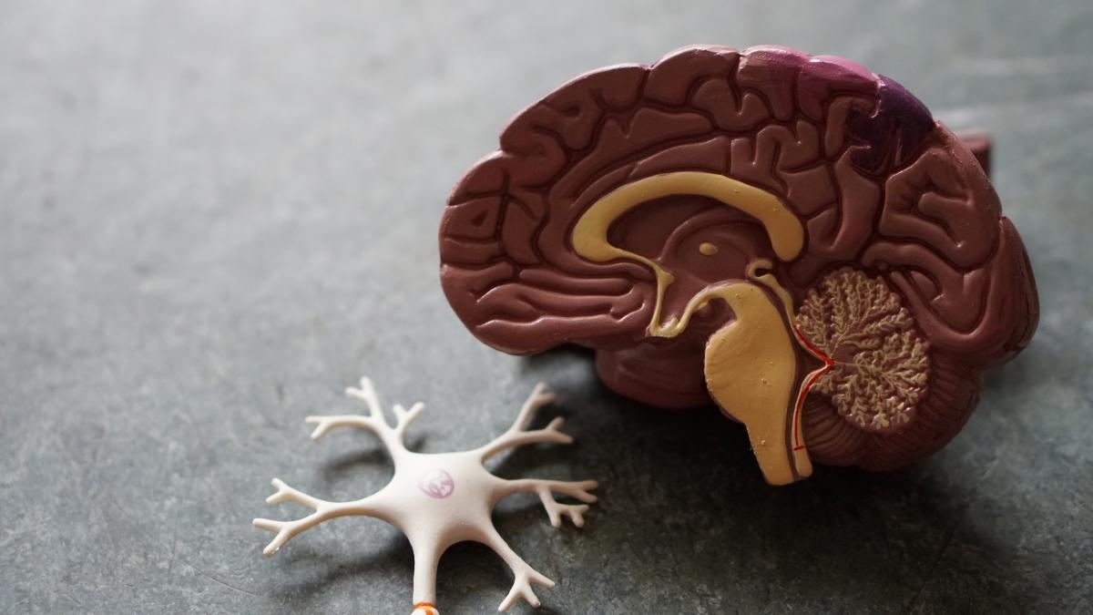 脳に悪影響を及ぼす神経細胞のイメージ写真